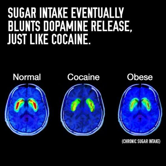 DopamineBrain02